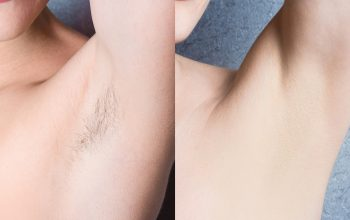 Laser Hair Removal VS Electrolysis Hair Removal: Which is better?