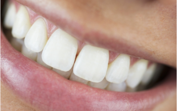 8 Surprising Benefits of Perfect Teeth Alignment